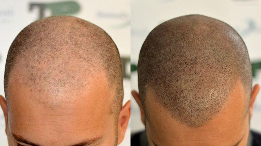 Mrcopigmentation Results