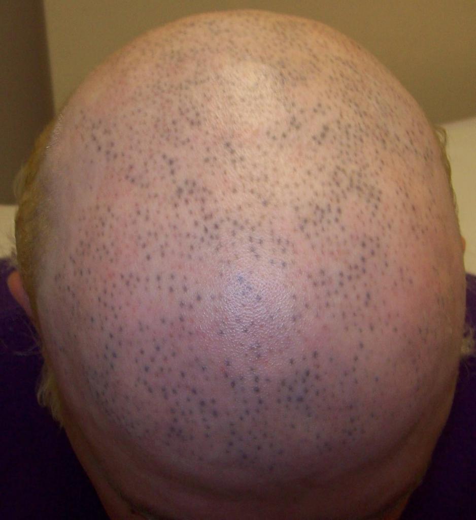 bad_scalp_micropigmentation