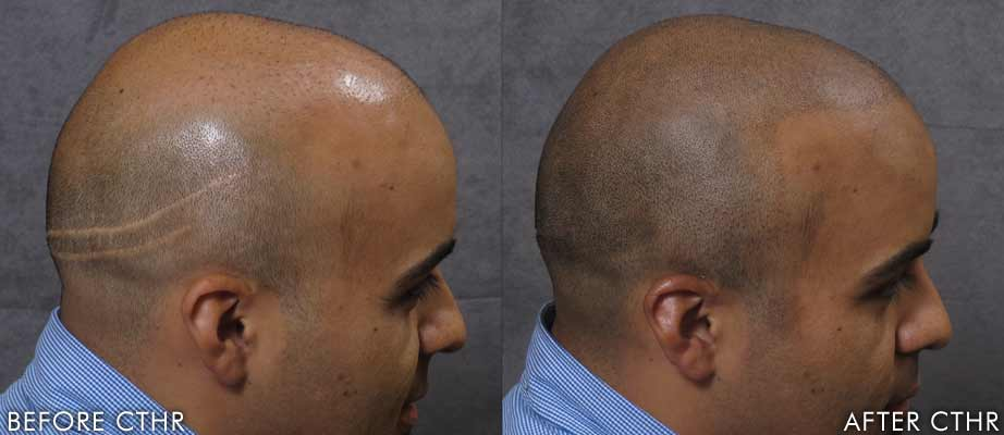 Scalpmicropigmentation For Scars Micropigmentation Stylist