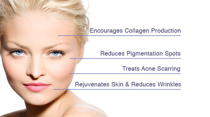 Microneedling services
