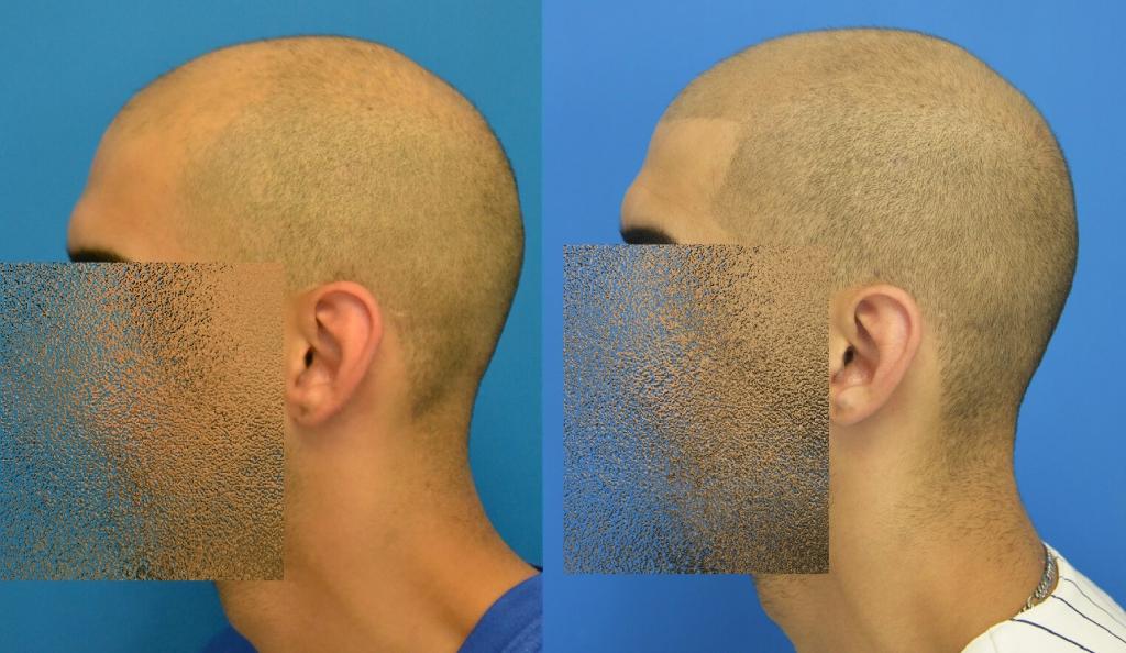 scalp_micropigmentation