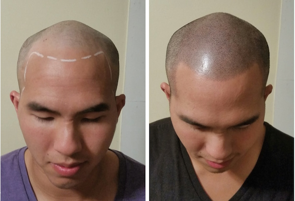 Hair tattoo the new toupee micropigmentation stylist for Head tattoo hairline